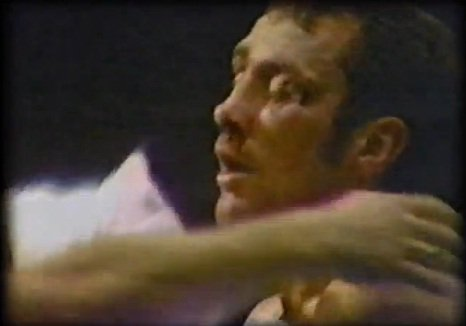 Alan Minter's cuts from Hagler's punches